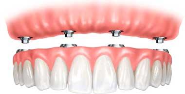 Dental Implant Treatments